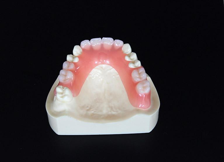 快適な入れ歯「ミラクルフィット」
