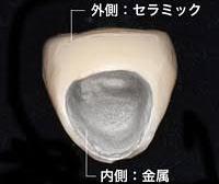 メタルボンドセラミック