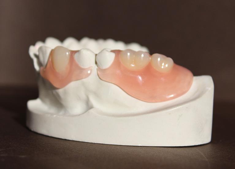 エステショット義歯01