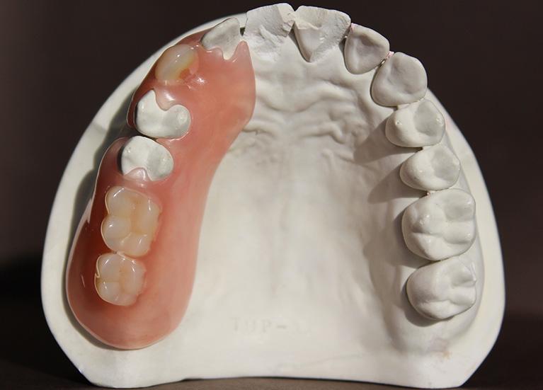 エステショット義歯02